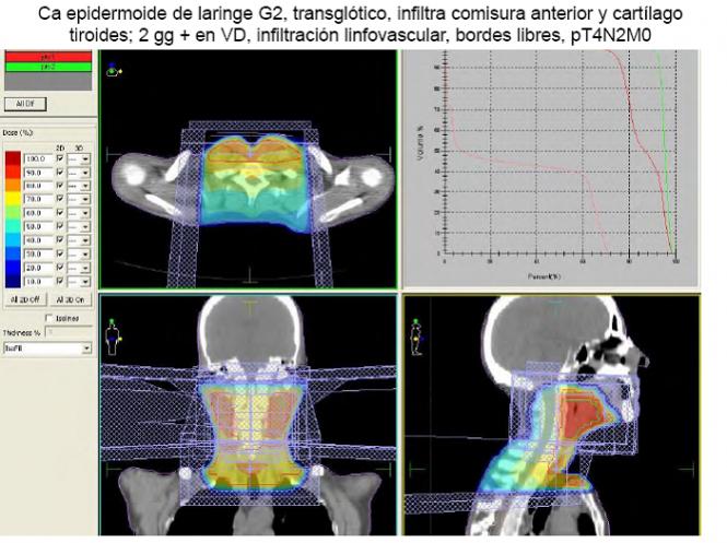 La localización del cáncer de cabeza y cuello permite una manifestación temprana de síntomas, pero las recaídas son muy frecuentes (fuente: ponencia Dra. Laura Cerezo en el I Curso de Formación Conjunta en Tumores de Cabeza y Cuello).